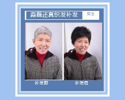 西宁织发补发使用时长