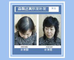 西宁织发补发解决油脂性脱发